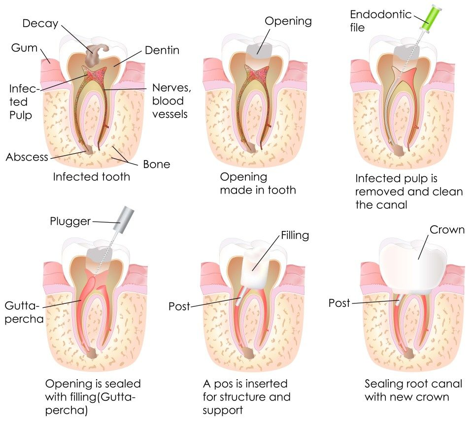 Root Canal East Melbourne Dentist