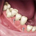 dental implants melbourne teeth attached