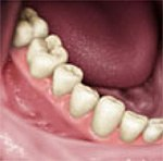 dental implants melbourne final teeth view