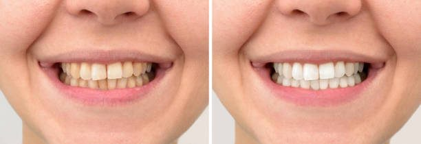 Teeth of a middle-aged woman before and after correction and whitening. Close-up.